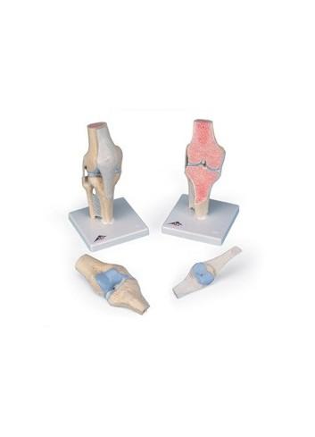 Modello della sezione articolare del ginocchio, in 3 parti A89