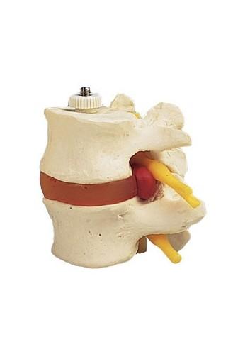 2 vertebre lombari con...