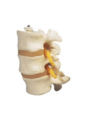 3 vertebre lombari, montaggio elastico A76/8