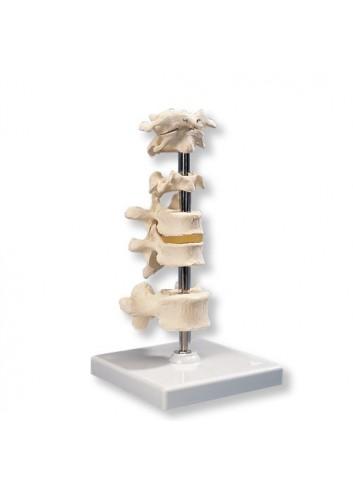 6 vertebre A75