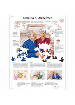 3B Scientific, tavola anatomica, Poster Malattia di Alzheimer cod. VR4628UU