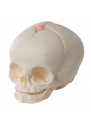Cranio di feto A25