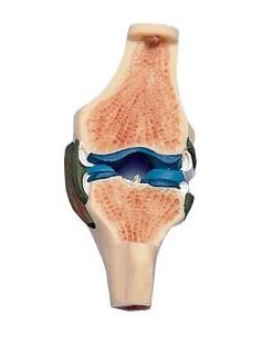 Sezione dell'articolazione del ginocchio W19006