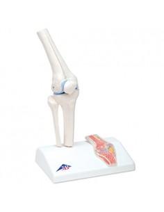 Mini articolazione del ginocchio con sezione trasversale, su base A85/1