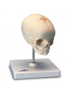 Cranio di feto, su cavalletto (cod. A26)