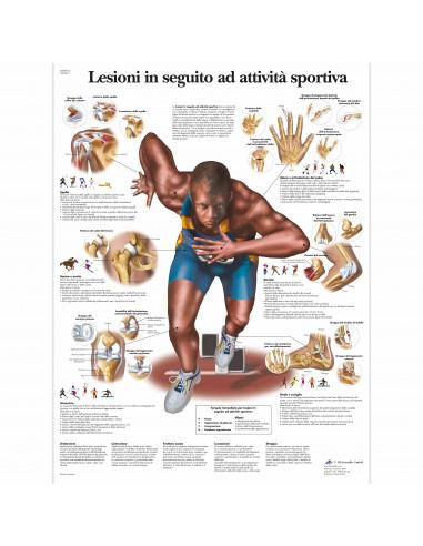 3B Scientific, tavola anatomica, Lesioni in seguito ad attività sportiva (cod, VR4188UU)