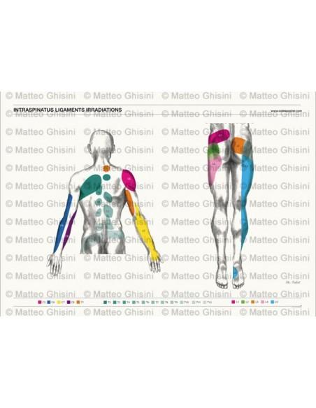 OsteoPoster Irradiazione Legamenti Interspinosi Dorsale