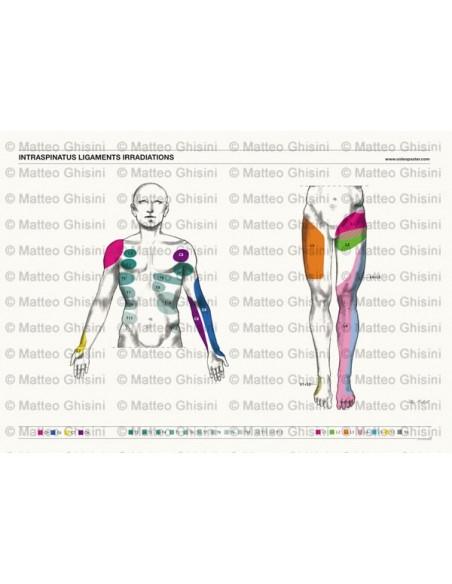 OsteoPoster Irradiazione Legamenti Interspinosi Frontale