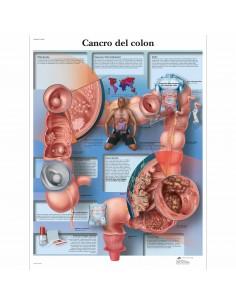 3B Scientific, tavola anatomica, Poster Cancro del Colon cod. VR4432UU