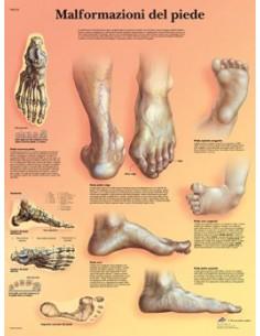3B Scientific, tavola anatomica, Poster Malformazioni di piede (cod. VR4185L)