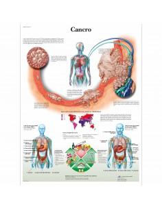 3B Scientific, tavola anatomica, Poster Cancro cod. VR4753L