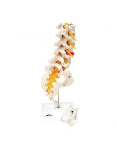 Colonna vertebrale lombare 3B Scientific con ernia del disco dorsolaterale  A76/5